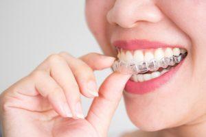 Types Of Dental Braces Mumbai   Invisible Braces Treatment India