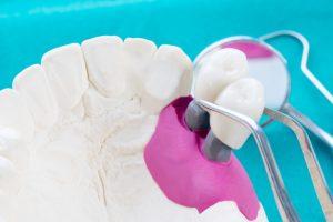 dental bridges Mukul Dabholkar