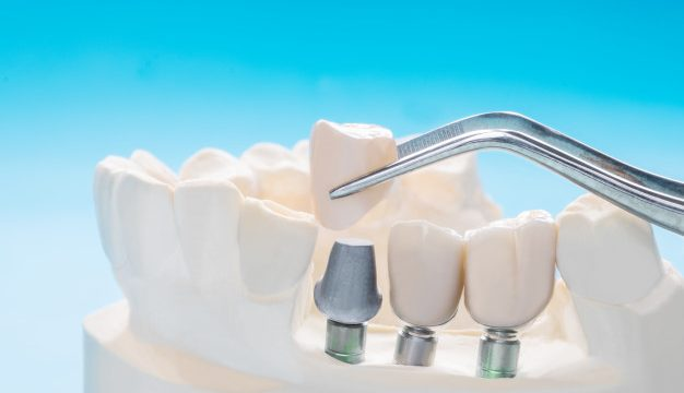 Best Dental Cosmetic Crown Mumbai   Tooth Crowns Procedure India